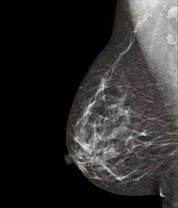 mamografia-sevilla-resolana